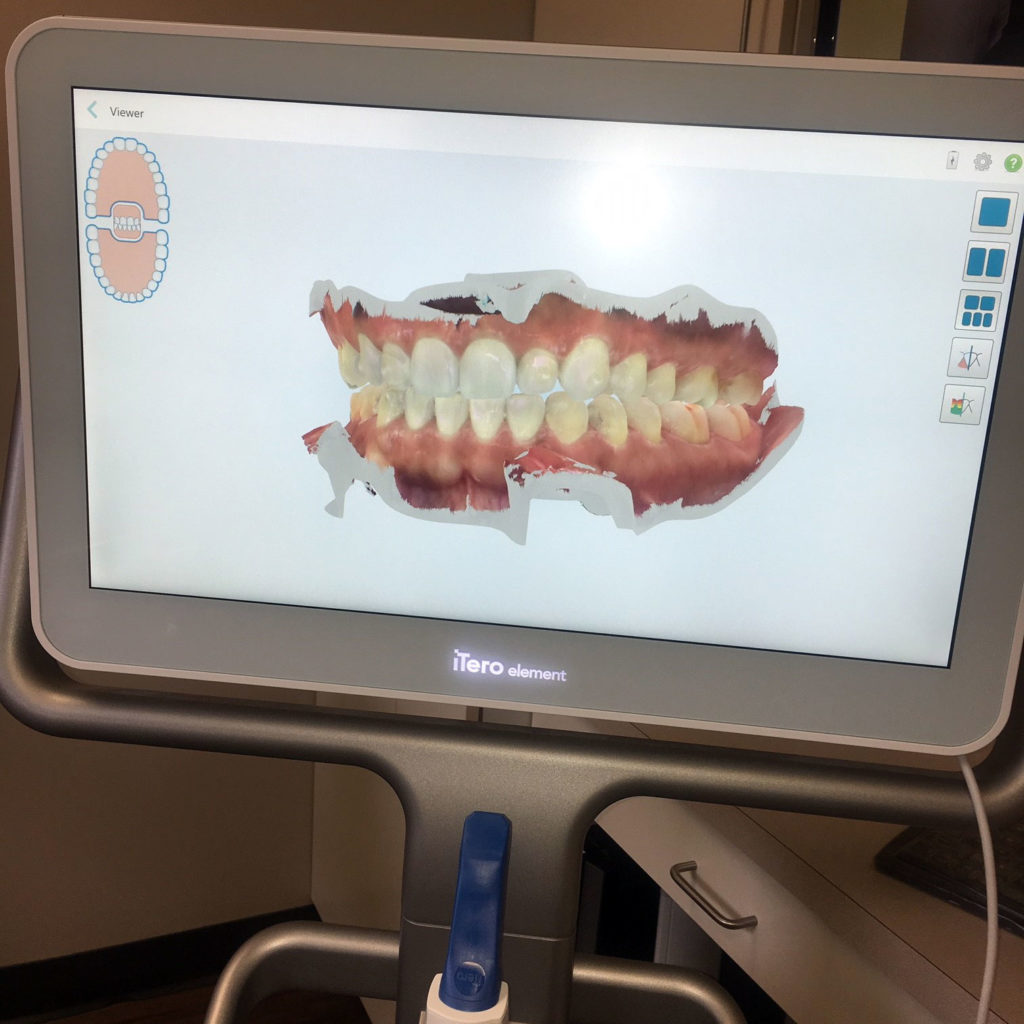 iTero - Advanced Dentistry in Springfield